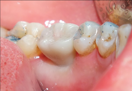 A zirconia crown cemented into place onto its hybrid zirconia retainer.
