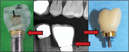 Red arrows show open margins in experiment, x-ray image and removed abutment-crown complex.