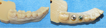 The lower printed model shows the outline of a molar and an adjacent premolar that have been ground down to the tissue level. There is a 5.7 mm and 4.5 mm diameter stock healing abutment positioned in the center of each tooth respectively. Note the large size discrepancy.