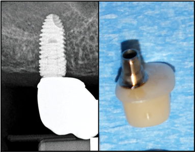 Show the flat profile of the tissue facing surface of a hybrid custom abutment.