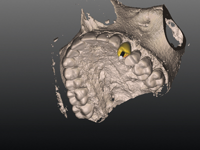 Planned implant in 3D visualization in the SMART Guide Software.