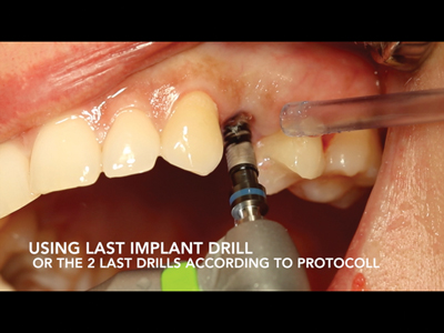 After the preparation, use the implant drills up to the last drills needed