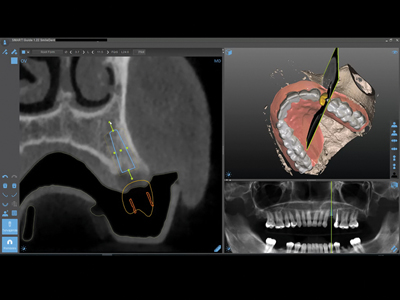 Planned implant in Occlusal Vertical (OV) view.