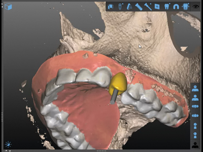 Digital tooth setup visualization in the SMART Guide Software.