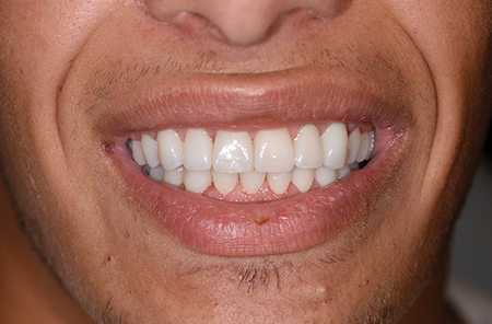 Intraoral and extraoral views at the completion of Prosthodontic treatment.