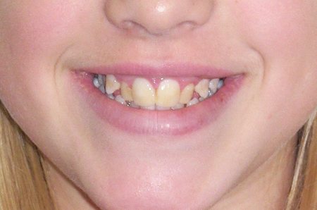 Photos before starting orthodontic treatment at age 13.