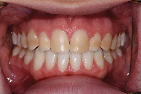 Intraoral and extraoral views after completing orthodontic treatment, at age 16.