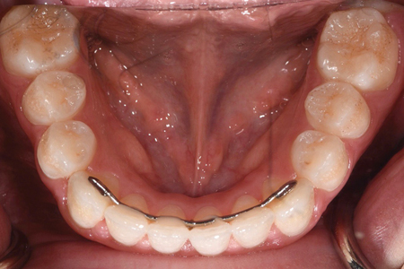 Occlusal views. Note the pitted occlusal surfaces.