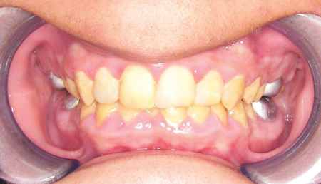 Maximum intercuspation view before starting orthodontic treatment.