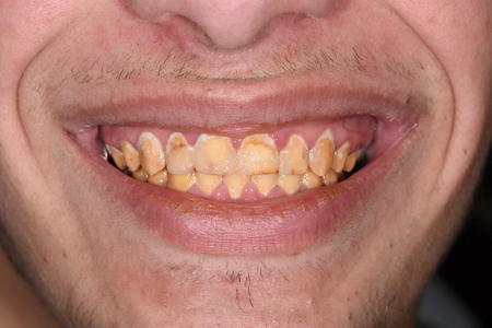 Intraoral and extraoral views at the completion of orthodontic treatment.