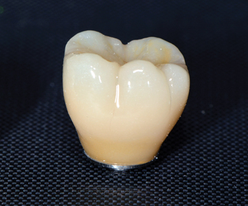 Final monolithic zirconia screw-retained hexed crown to seat on Nobel Biocare WP On1TM base. Pre-fabricated prior to surgery