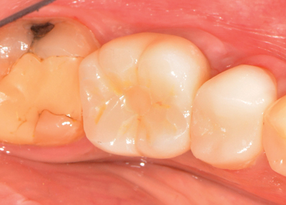 One-year post-operative clinical presentation of the surgical-prosthetic site (Occlusal View).