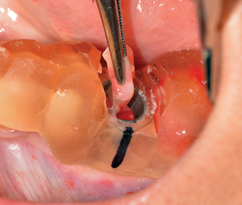 L-PRF being placed into osteotomy prior to implant placement.