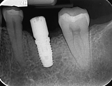 Periapical radiograph of implant #36 at 3-months postop.