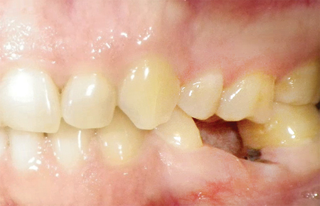 Clinical photographs of #36 prior to treatment and after the implant has been in function for six months.