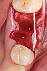 Clinical intraoperative photograph showing membrane placement on the buccal aspect of the socket,