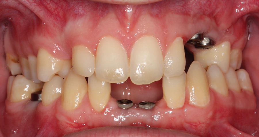 Intraoral picture post osseointegration.