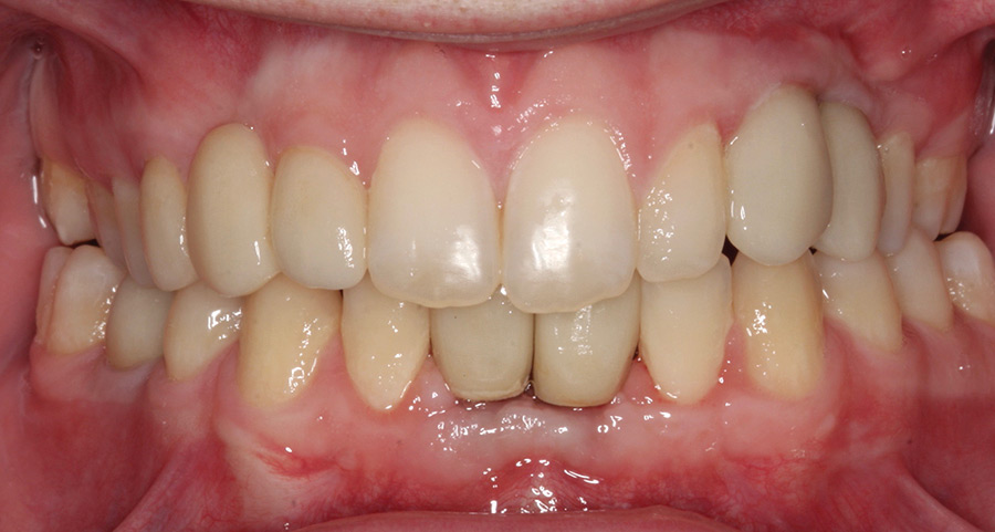 Final intraoral frontal view.