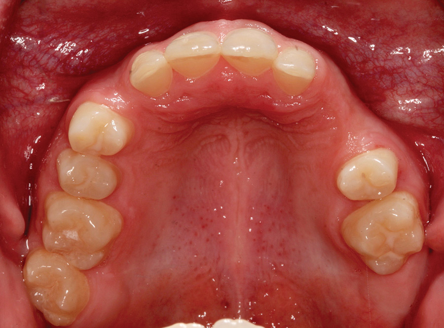 Pre-op occlusal view of maxilla.