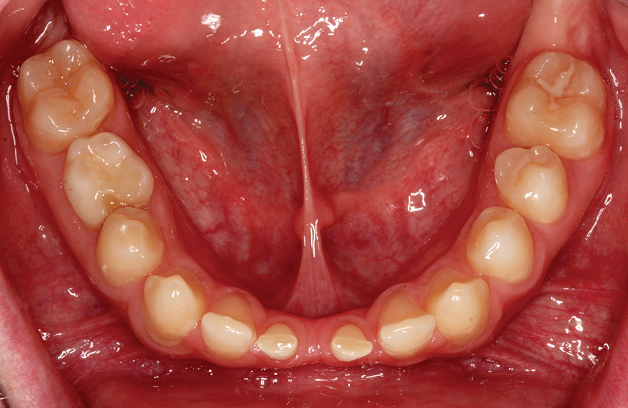Pre-op occlusal view of mandible.