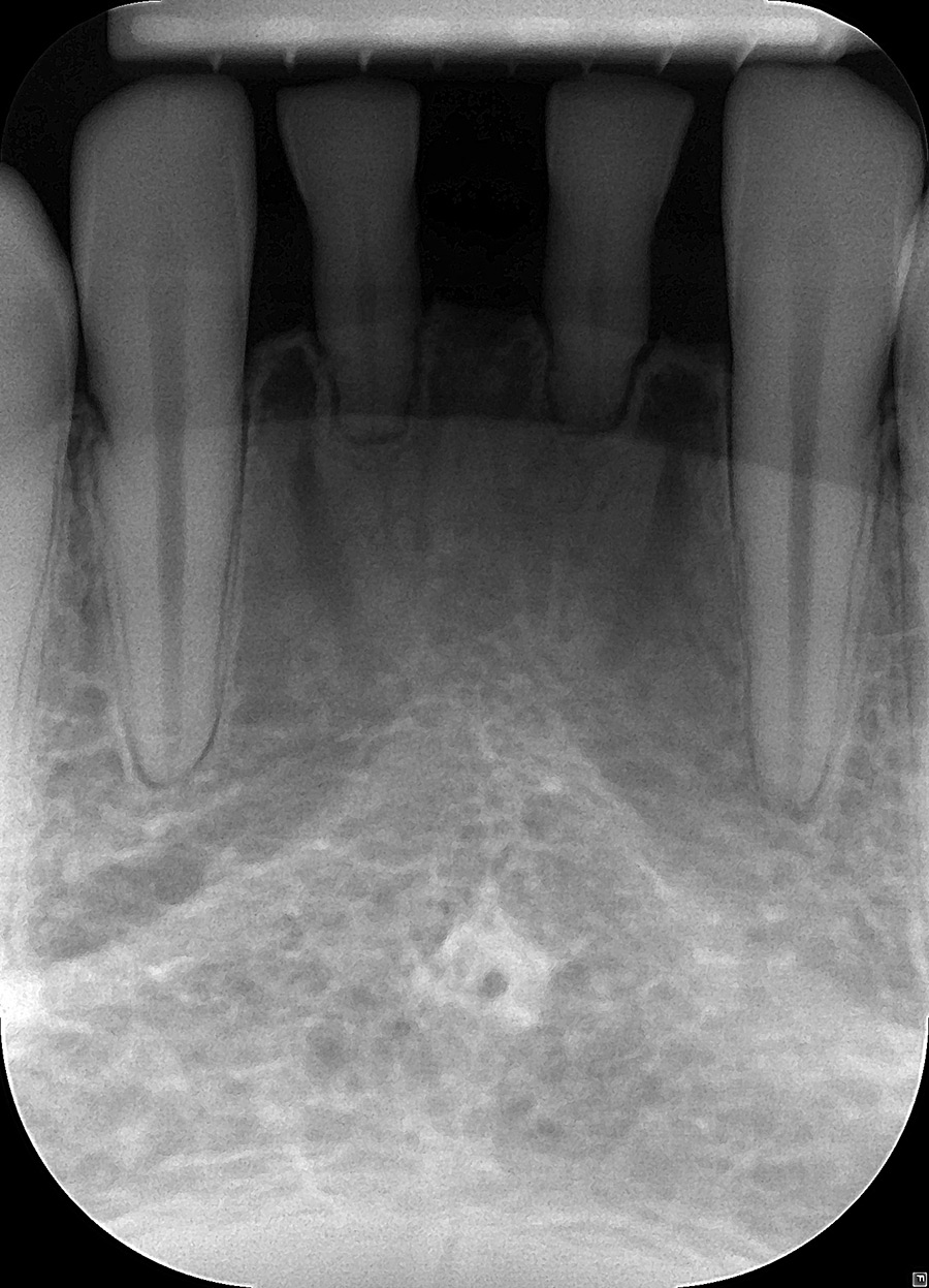 Pre-op periapical X-ray of mandibular central incisors.