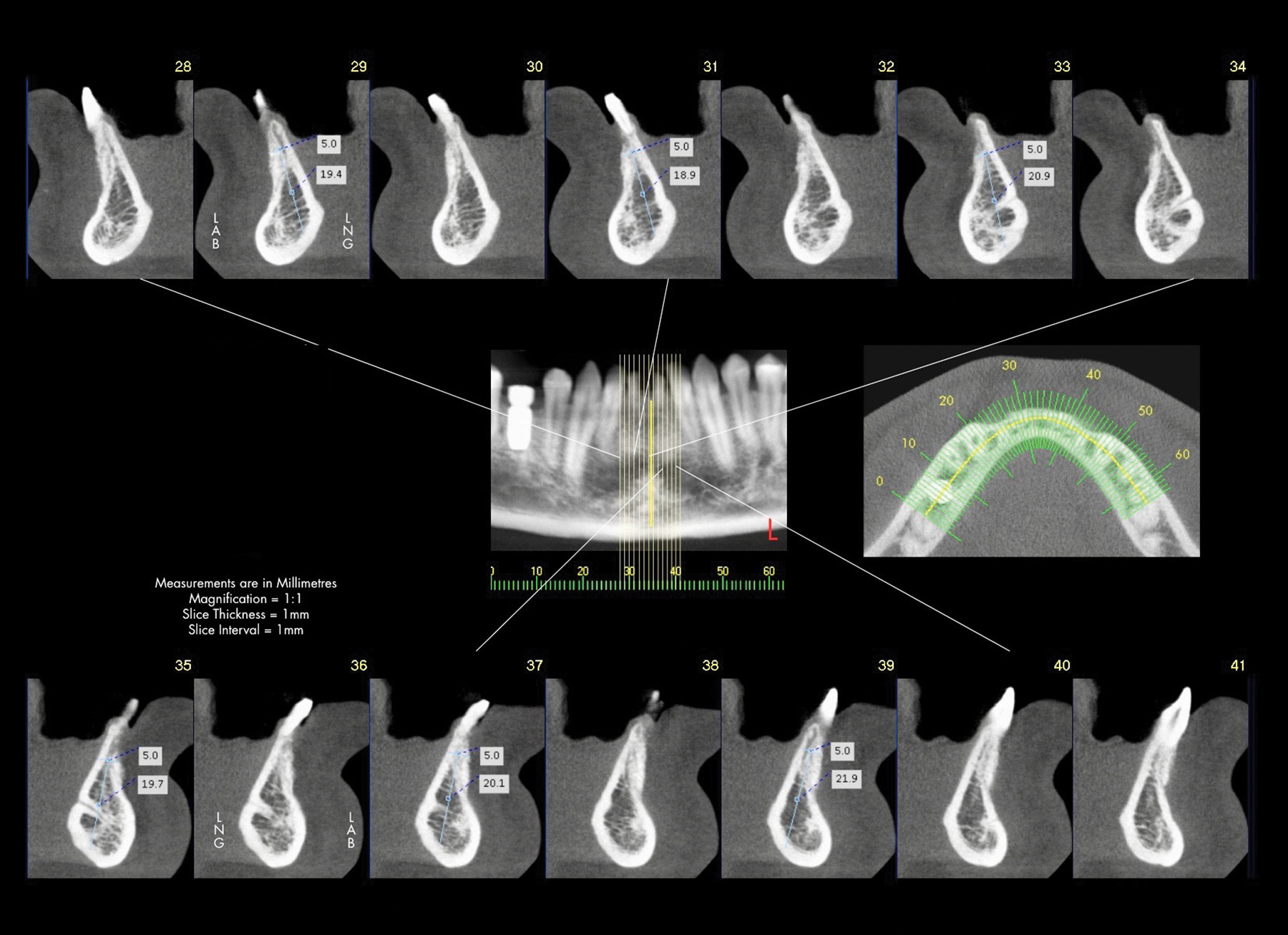 CT scan of mandible after ridge augmentation.