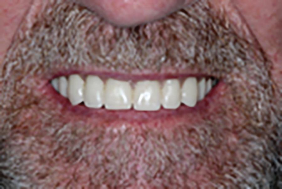 Initial presentation: (A) frontal, (B) maxillary occlusal view, and (C) mandibular anterior view.