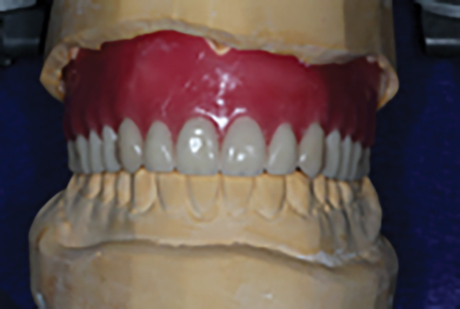 New maxillary conventional complete removable dental prosthesis: on the articulator at the tooth set-up stage and (B) in the mouth during insertion.