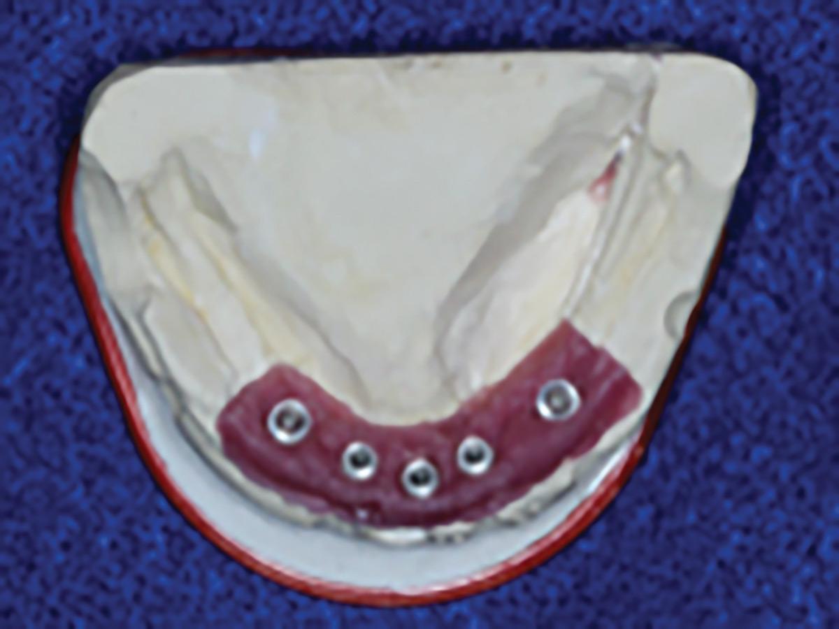 Mandibular master cast with gingival analogue.
