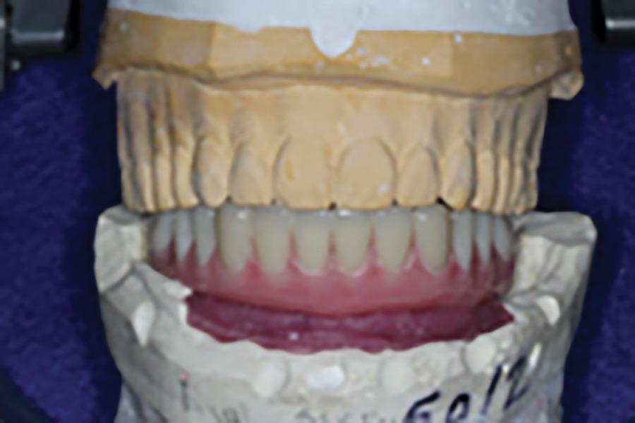 Mandibular tooth set-up on the articulator.