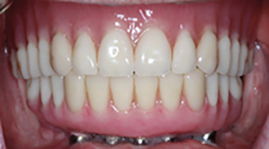 Intraoral view at the completion of treatment: (A) frontal view of the definitive maxillary and mandibular prostheses, and (B) occlusal view of the definitive mandibular prosthesis.