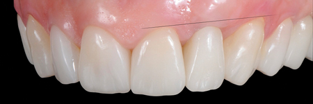 Gingival adaptation around new form and profile.