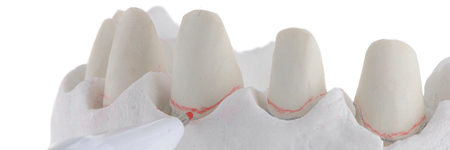 A red mark is traced with a 0.5 mm pencil over the gingival contour projecting it on the abutment's wall (red line).