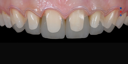 Clinical case illustrating the adaptation forms and profiles concept: the gingival profile adapts itself in a symmetrical way to the coronal emergence profile and not the reverse.