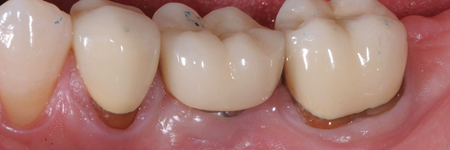 Inadequate quality and quantity of keratinized gingiva