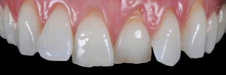 Gingival adaptation around new form and profile with NO-Prep protocol.