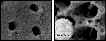 Qualitative destruction of collagen fibrils in dentin caused by neutrophils. Scanning electron micrographs at 5000X magnification shows intact collagen fibril structure of demineralized tooth dentin in media alone (left). The right image depicts a loss of the collagen fibril structure and holes cut between the dentinal tubules after the demineralized dentin was incubated with neutrophils for 24 hours.