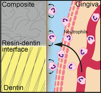 Neutrophils could be a potential factor leading to the premature failure of resin composite restorations. Neutrophils enter the mouth from the gingiva and form a wall along the tooth and the plaque/biofilm. Neutrophils constantly release their components onto the biofilm and tooth structure underneath, breaking down tooth dentin and resin composite.