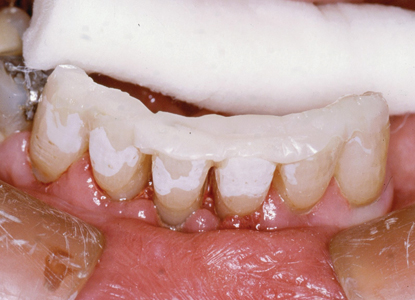 Following photo curing mobile teeth splinted in correct occlusal position.