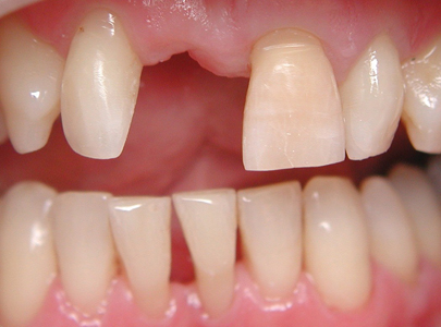 Missing central incisor prior to placing a direct fibre reinforced bridge