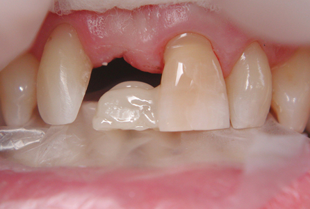 Bond composite to abutment tooth and occlude using a freezer bag to create lingual contour.