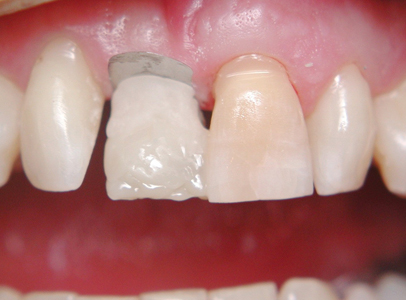 Create gingival margin with a sectional matrix and build up with RMGIC