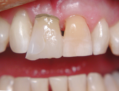 Construct a labial facing cantilevered onto the abutment tooth.