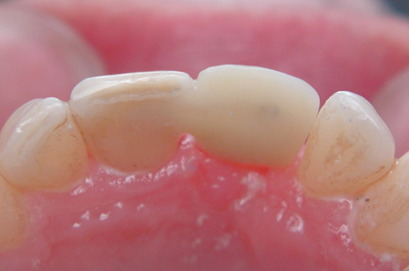 Lingual surface after fibres have been embedded and the occlusion adjusted, contoured and polished