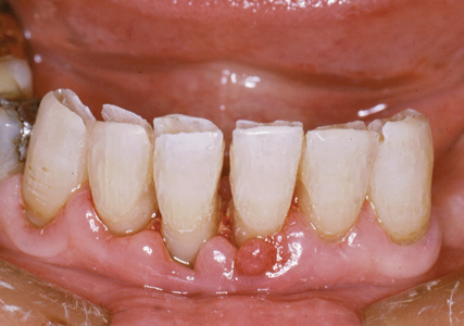 Mobile lower incisors and canines with 1.5 mm slot along incisal edges.