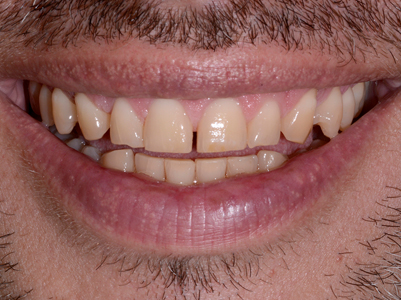 45-year-old male patient with incisal and cuspid attrition.