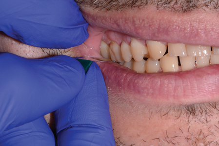 Shimstock between the posterior teeth to ensure occlusal contact after each tooth is augmented.