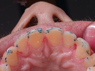 Protrusive markings on opposing incisors using two-color occlusal indicator tape.