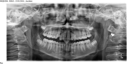 Impacted third molars with no associated pathology, age 13.