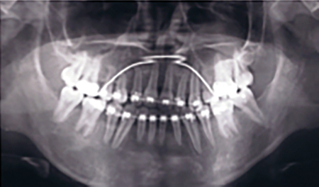 tatus 3.5 years following surgery. Despite successful emergence of 13 and 45, the teeth were removed to facilitate the orthodontic treatment plan